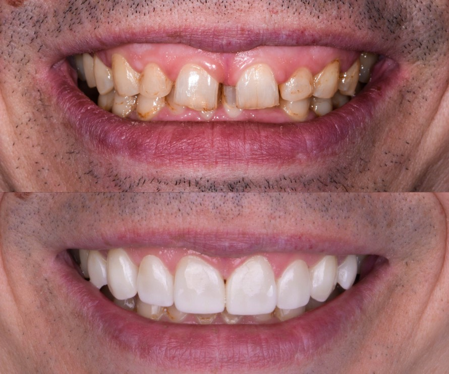 Veneers in Heidelberg